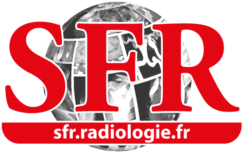 SPR renova parceria com SFR e oferece benefícios exclusivos aos membros