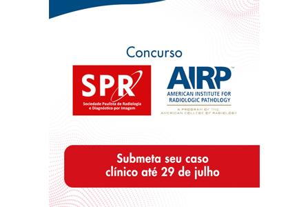 Garanta sua inscrição no Concurso SPR-AIRP